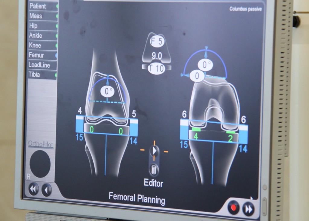 מסך מחשב הניווט התוך-ניתוחי בניתוח להחלפת מפרק ברך - מאפשר לרופאים דיוק מרבי בהחלפת המפרק
